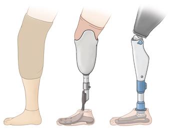 Three types of leg prosthesis.