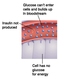 Closeup cross section of blood vessel near cells showing Type 1 diabetes. Insulin not produced. Glucose can't enter cells and builds up in bloodstream. Cell has no glucose for energy.