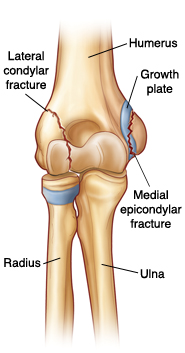 Front view of elbow joint showing radius, ulna, humerus, and growth plate on bottom and side of humerus. Lateral condylar fracture is on outside lower humerus. Medial epicondylar fracture is on inside lower humerus at growth plate.