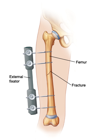Outline of leg showing screws going through skin into femur. Screws are connected to external fixator on outside of leg. External fixator is holding fracture together.