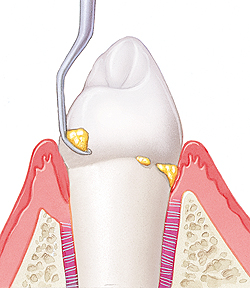 Tooth in cross section of gum and bone. Plaque on base and most of root of tooth. Gum is swollen. Instrument is scraping plaque from lower part of  tooth.