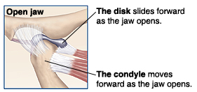 Closeup of TMJ when jaw open showing disk and condyle sliding forward.
