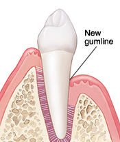 Tooth in cross section of gum and bone. Gumline is lower on tooth after healing from surgery.