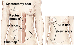 Front view of female breasts and abdomen showing TRAM flap breast reconstruction.