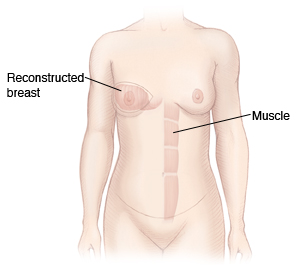 Front view of woman's chest and abdomen showing muscle from abdomen moved up to reconstruct breast.