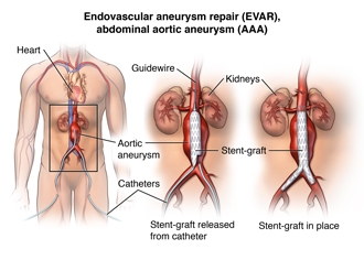 Stent graft repair of abdominal aneurysm