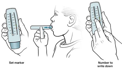 Three steps of child using peak flow meter.