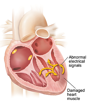 Cross section of heart showing ventricular tachycardia.