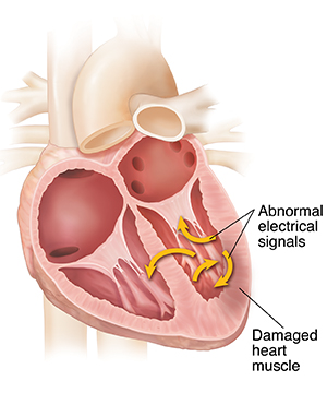 Cross section of heart showing ventricular fibrillation.