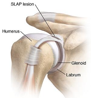 Front view of shoulder joint showing SLAP lesion.