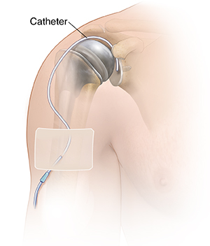 Front view of upper arm showing humerus. A catheter is inserted into the glenohumeral joint.