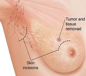 Three-quarter view of female underarm area showing breast anatomy ghosted in. Incisions in underarm and on breast for lumpectomy.