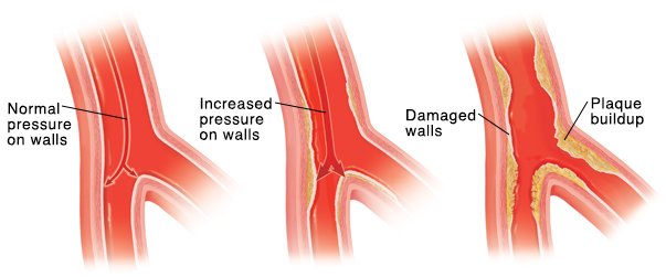 Blood flows freely through a healthy artery. Artery walls are roughened by high blood pressure. This makes it easier for plaque to build up. Plaque collects, narrowing and stiffening the wall of the artery.