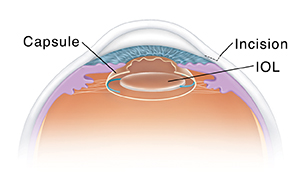 Cross section of eye showing intraocular lens implant.