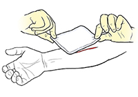 Gloved hands placing bandage on wound on forearm.