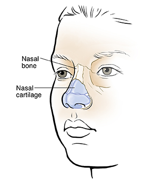 Three-quarter view of child's face showing nasal bones and cartilage.