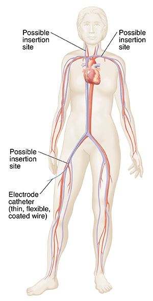 Front view of female outline showing heart, major arteries and veins. Catheter inserted in femoral vein going to right heart.