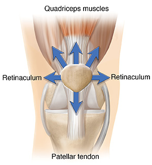 Front view of normal knee joint with arrows showing forces pulling evenly on patella.