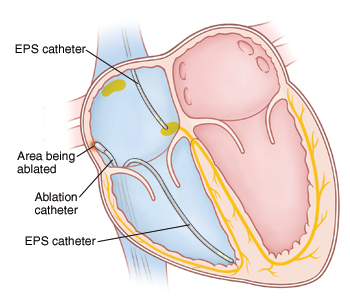 Cross section of heart showing catheters inserted into right atrium and ventricle for ablation procedure.