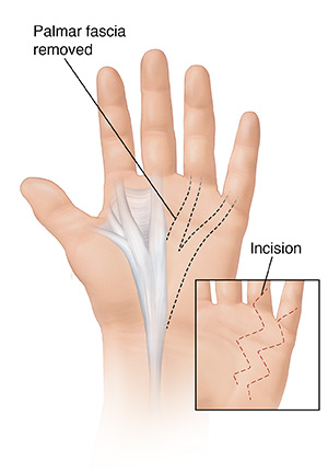 Palm view of hand showing palmar fascia removed with an inset showing a zigzag incision.