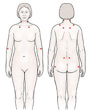 Front and back views of woman showing common fibromyalgia tender points.