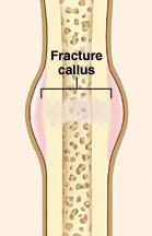 Broken bone showing callus forming at break.