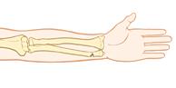 Lower arm bones showing greenstick fracture of wrist.