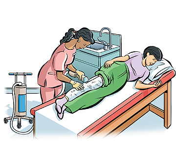 Woman lying on side on exam table. Health care provider is using saw to remove cast from woman's leg.
