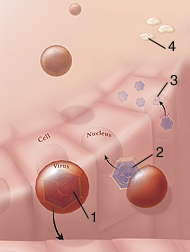 Cells being infected by herpes viruses.