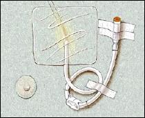 Image of IV catheter
