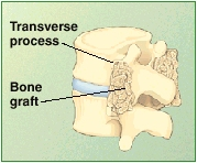 Cross section of lumbar vertebrae showing fused bone between transverse processes.