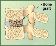 Cross section of lumbar vertebrae showing bone graft between vertebrae.