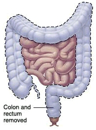 Image of the intestines with the colon and rectum highlighted to show the section to be removed.