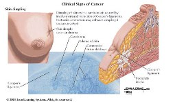 Image of clinical signs of cancer
