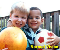 Simulation photograph: normal vision