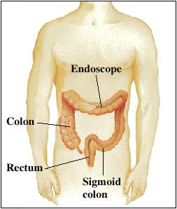 Outline of torso showing colon, sigmoid colon, and rectum. Scope is inserted through rectum and sigmoid colon into middle of colon.