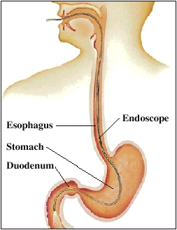 Outline of human head and chest with head turned to side. Cross section of esophagus leading from mouth to stomach is shown. Stomach ends at duodenum, first part of small intestine. Endoscope is inserted through mouth, esophagus, and stomach and ends in duodenum.
