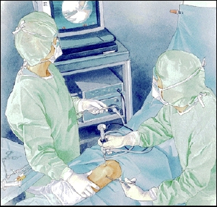 Two healthcare providers wearing surgical gowns, masks, and hats doing surgery with arthroscope in knee. They are looking at video monitor.