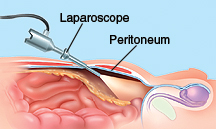 Cross section side view of male pelvis showing laparoscope inserted in lower abdomen underneath peritoneum.