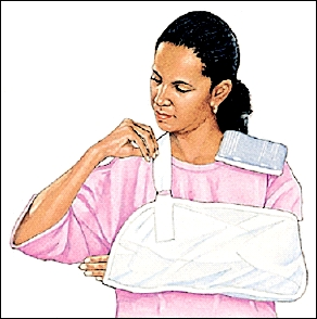 Woman with arm in sling and ice pack on shoulder.