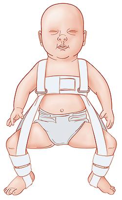Baby in Pavlik harness.