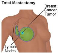 Ilustración de una mastectomía total