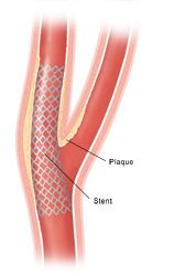 Carotid artery angioplasty with stenting