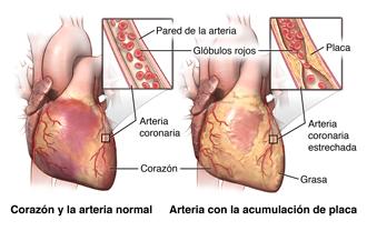Corazón y arteria normal, arteria con acumulación de placa