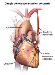 El corazón y la parte de la arteria coronaria donde se realiza el injerto