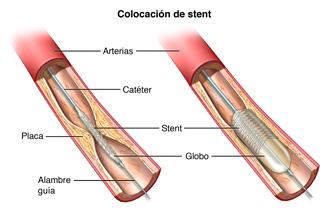 Parte de una arteria que muestra la acumulación de placa. Un catéter y stent están colocados.