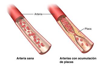 Una arteria normal y una dañada