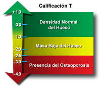 El gráfico muestra T score