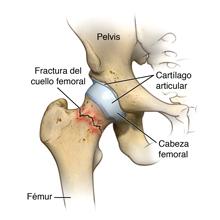 Fractura del cuello femoral
