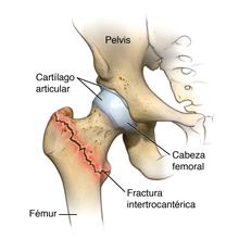 Fractura intertrocantérica de cadera